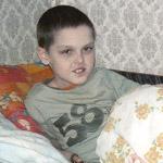 Miklóska kemoterápiás kezelést kapott