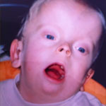 Attila 7 éves beteg kisgyermek