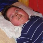 Balázs 13 éves anyagcsere betegséggel született