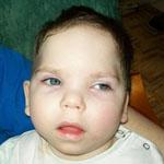 Ferike 2,5 éves beteg kisfiú