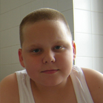 József 13 éves agyvérzéses, agy műtétes kisfiú