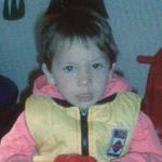 Lilla 3 éves harmadfokú égést elszenvedett kislány