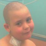 Málna 6 éves kislány, Hyper IgE szindrómában szenved