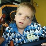 Szabolcs öt éves fejlődési rendellenességekkel született kisfiú